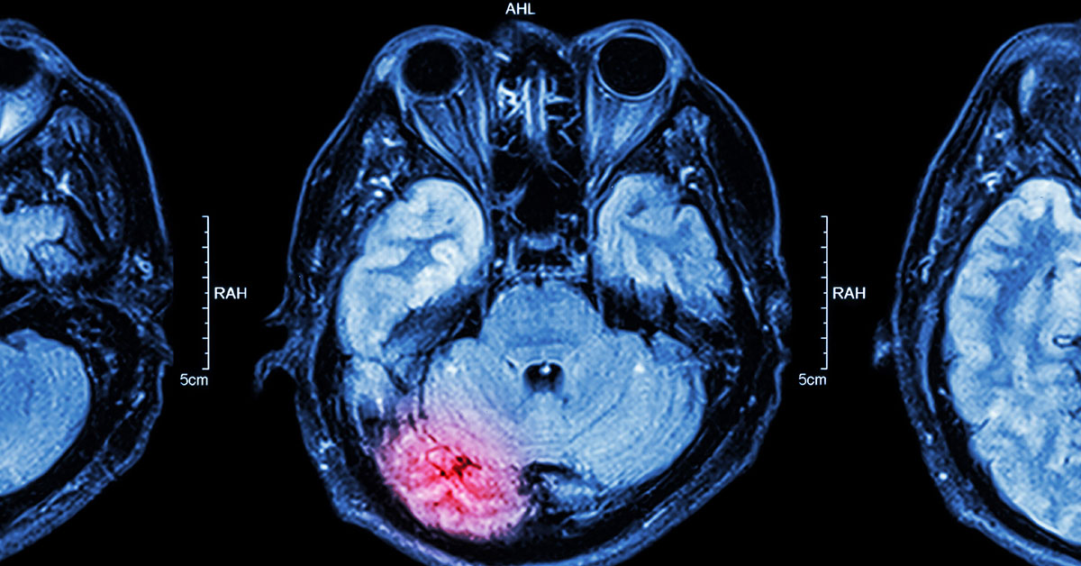 Close up of MRI brain : Lower part of brain ( eyes , temporal lobe of cerebrum , cerebellum , brain stem); blog: 6 Things to Know About Brain Injuries
